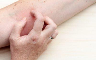 Obrzęk alergiczny i uczulenia skóry